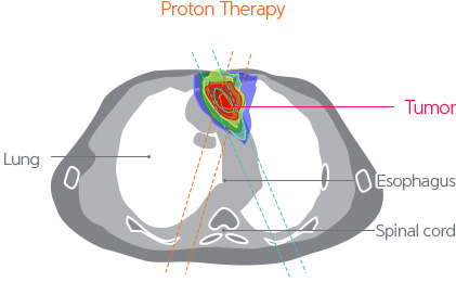 Target Cancer Cancers Treated Samsung Proton Therapy