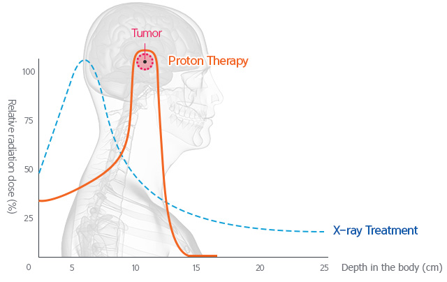 How It Works What Is Proton Therapy Samsung Proton