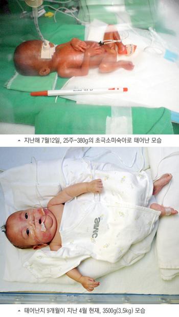 초극소미숙아 개월 수별 비교 사진, 지난해 7월12일, 25주-380g의 초극소미숙아로 태어난 모습, 태어난지 9개월이 지난 4월 현재, 3500g(3.5kg) 모습