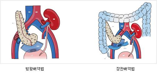 신장, 췌장 동시 이식(좌측:방광배액법, 우측:장관배액법)