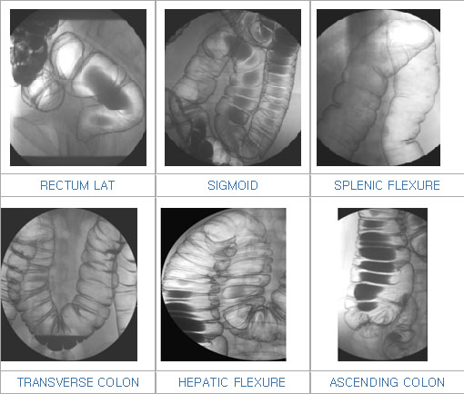Small Bowel Follow-Through - RadiologyInfo.org