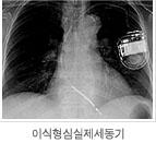 이식형 심실제세동기