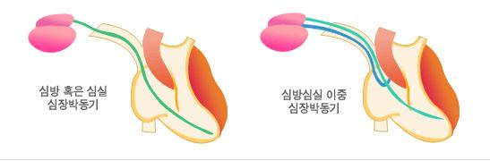 심장박동기
