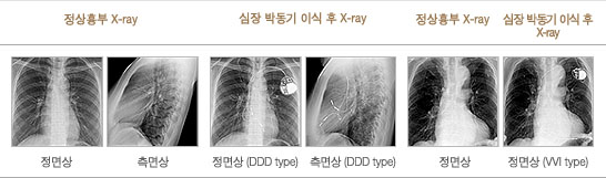 이식전·후 X-ray
