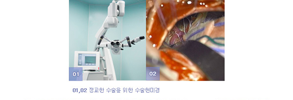 01,02 정교한 수술을 위한 수술현미경