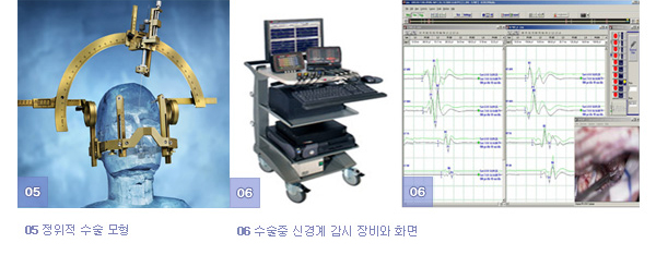 05 정위적 수술 모형, 06 수술중 신경계 감시 장비와 화면
