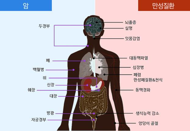 암(두경부, 폐, 백혈병, 위, 신장, 췌장, 대장, 방광, 자궁경부), 만성질환(뇌졸증, 실명, 잇몸감염, 대동맥파열, 심장병, 폐렴, 만성폐질환&천식, 동맥경화, 생식능력 감소, 엉덩이 골절)