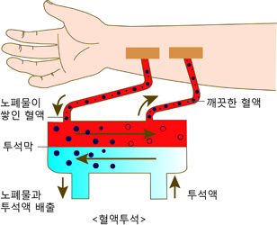 반투과막을 통해 노폐물을 거른 후 깨끗한 혈액이 되는 혈액투석 원리